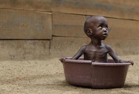 非洲飢餓兒童.jpg